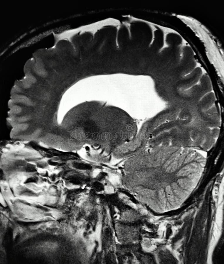 Κωνοειδής διαγωνισμός mri κύστεων παθολογίας εγκεφάλου απεικόνιση αποθεμάτων