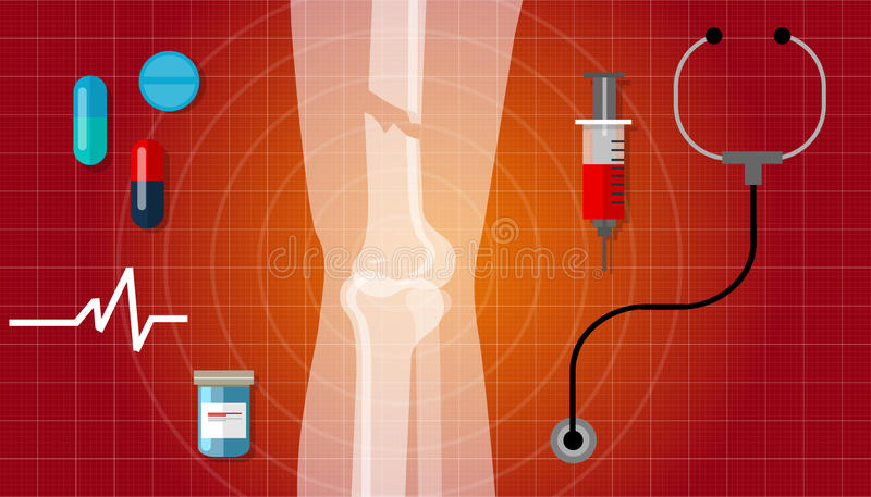 Κόκκαλων σπασμένο σπάσιμο ποδιών ανθρώπινο εικονίδιο απεικόνισης ιατρικής περίθαλψης ανατομίας των ακτίνων X διανυσματική απεικόνιση
