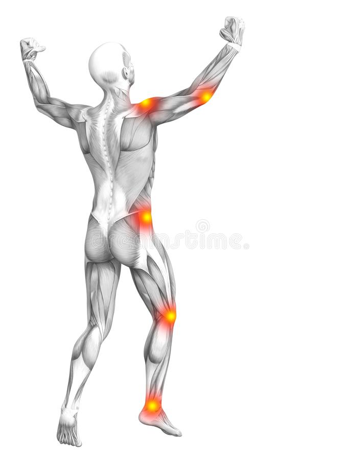 Κόκκινη κίτρινη ανάφλεξη καυτών σημείων ανατομίας μυών απεικόνιση αποθεμάτων
