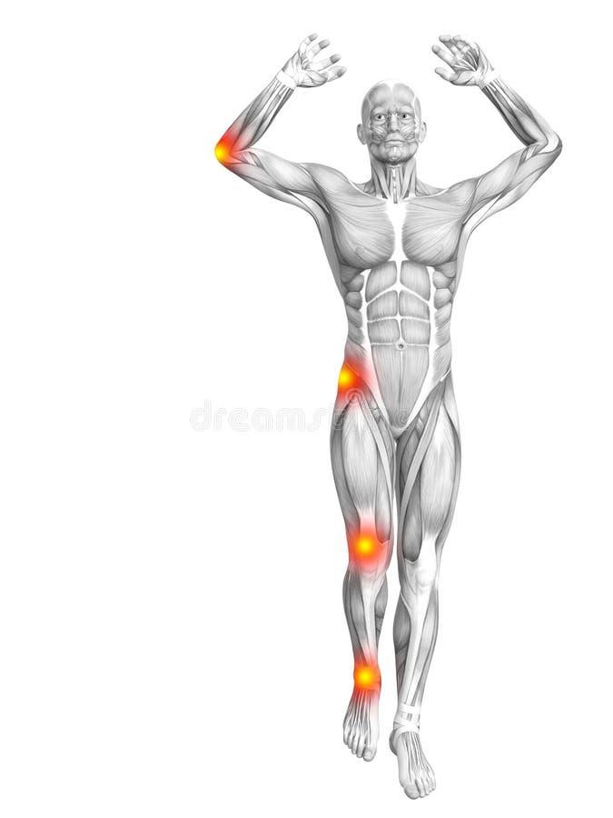 Κόκκινη κίτρινη ανάφλεξη καυτών σημείων ανατομίας μυών ελεύθερη απεικόνιση δικαιώματος