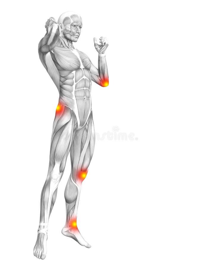 Κόκκινη και κίτρινη ανάφλεξη καυτών σημείων ανατομίας μυών διανυσματική απεικόνιση