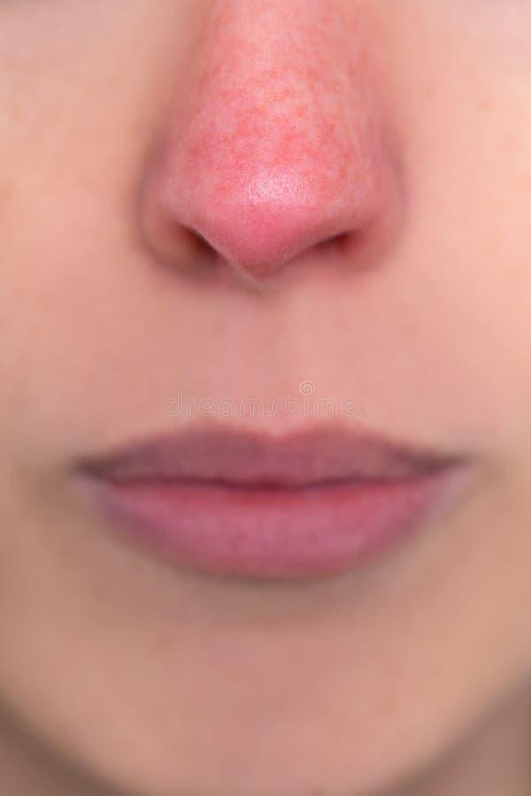 Κλείστε επάνω, γυναίκα με μια κόκκινη μύτη, αλλεργία, υποθερμία ή rosacea στοκ φωτογραφίες