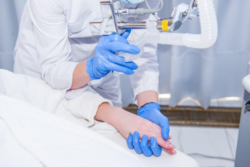 Κλείστε επάνω τη διαδικασία της αποφλοίωσης λέιζερ του θηλυκού χεριού Αναζωογόνηση λέιζερ και επεξεργασία δερμάτων του προβληματι στοκ φωτογραφία