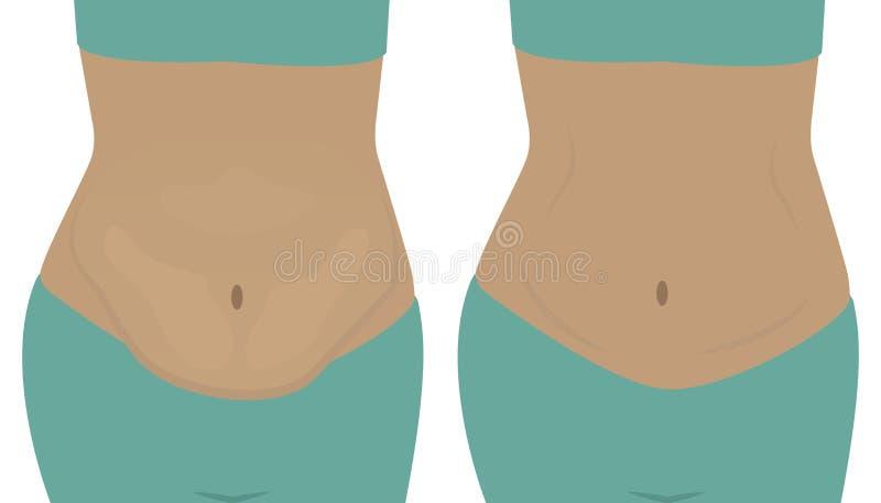 Λίπος και λεπτές κοιλιές κοριτσιών ` Πριν και μετά από απεικόνιση αποθεμάτων
