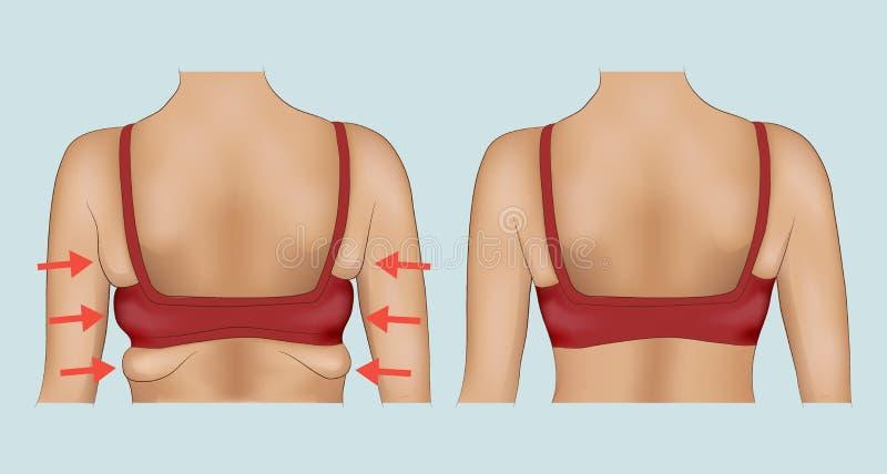 Λίπος μασχαλών μιας γυναίκας με τον προσδιορισμό βελών απεικόνιση αποθεμάτων