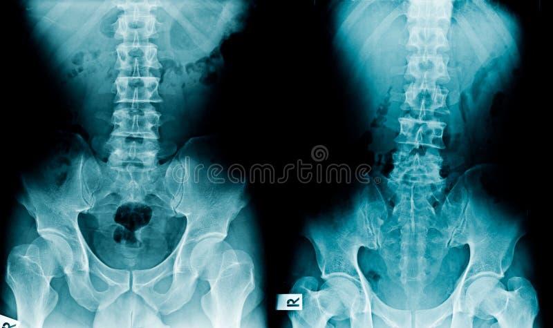 Λεκάνη και σπονδυλική στήλη ακτίνας X στοκ φωτογραφία