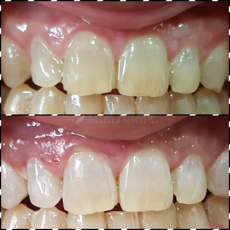 Λεύκανση δοντιών στοκ φωτογραφίες