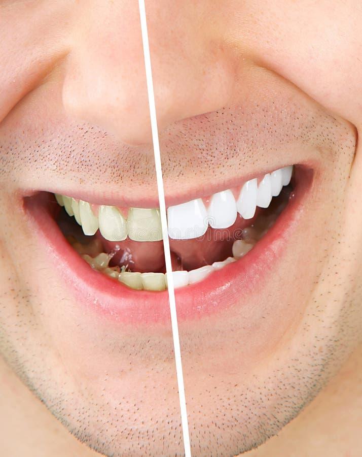 λεύκανση δοντιών στοκ φωτογραφία