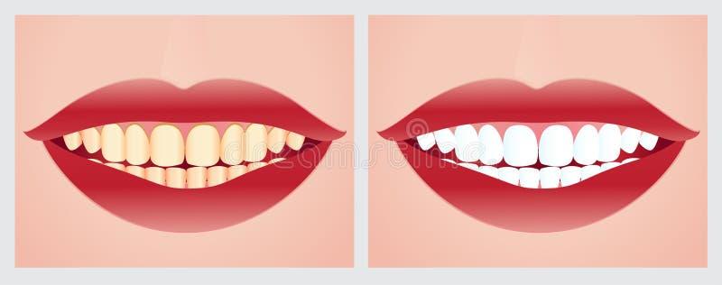 Λεύκανση δοντιών διανυσματική απεικόνιση