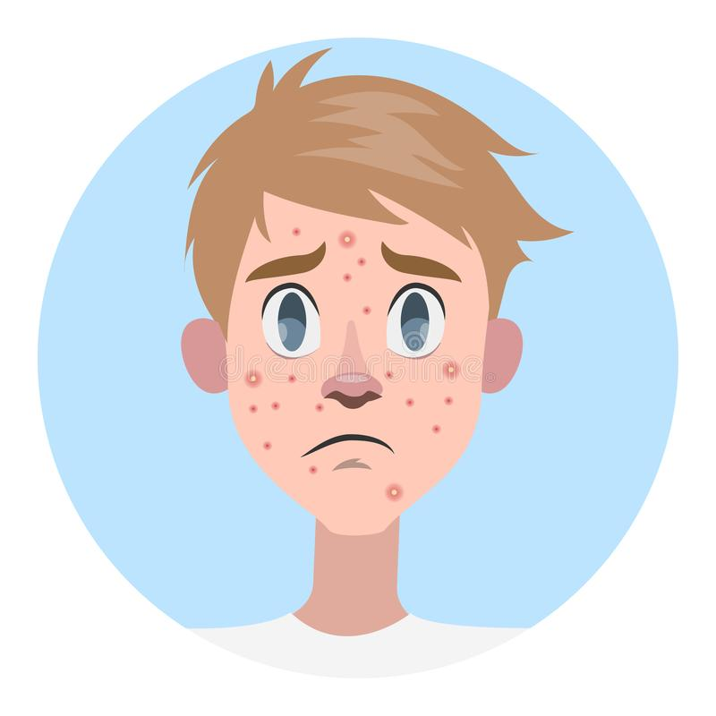 Λυπημένο άτομο με την ακμή στο πρόσωπο απεικόνιση αποθεμάτων