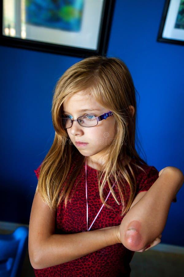 Λυπημένο κορίτσι με το μμένο αγκώνα στοκ εικόνες