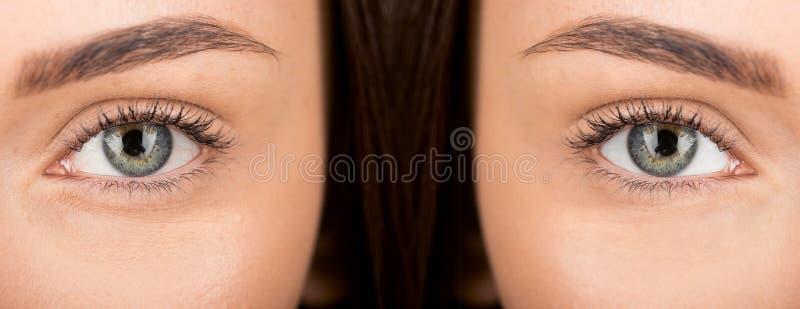 Μάτια της γυναίκας πριν και μετά από το ρετουσάρισμα στοκ εικόνα