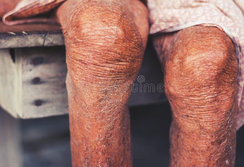Μαραμένο γόνατο της ηλικιωμένης γυναίκας, μαραμένο δέρμα μαυρίσματος στοκ φωτογραφία