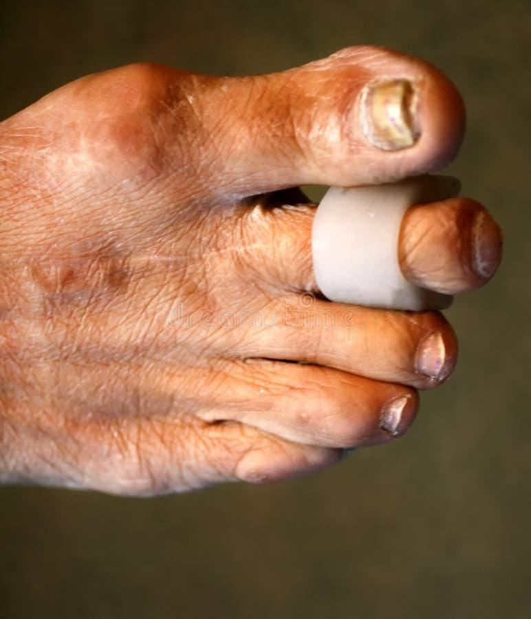 Μεσοδακτύλια μαξιλάρια χωρίσματα πόδι Καλαμπόκι στα toe Κυρτότητα των δάχτυλων Μεσοδακτύλιο μαξιλάρι καλαμποκιού στοκ εικόνες με δικαίωμα ελεύθερης χρήσης