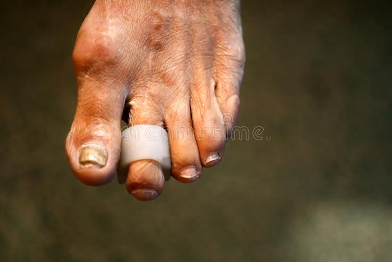 Μεσοδακτύλια μαξιλάρια χωρίσματα πόδι Καλαμπόκι στα toe Κυρτότητα των δάχτυλων Μεσοδακτύλιο μαξιλάρι καλαμποκιού στοκ εικόνα με δικαίωμα ελεύθερης χρήσης
