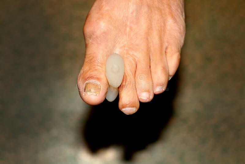 Μεσοδακτύλια μαξιλάρια χωρίσματα πόδι Καλαμπόκι στα toe Κυρτότητα των δάχτυλων Μεσοδακτύλιο μαξιλάρι καλαμποκιού στοκ φωτογραφία με δικαίωμα ελεύθερης χρήσης