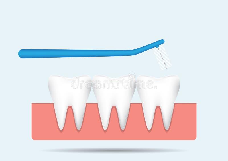 Μεσοδόντια βούρτσα με τα δόντια στη γόμμα στο μπλε υπόβαθρο, οδοντική διανυσματική απεικόνιση έννοιας προσοχής απεικόνιση αποθεμάτων
