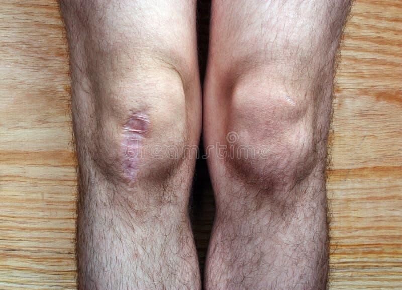Μετά από το γόνατο χειρουργικών επεμβάσεων στοκ εικόνα