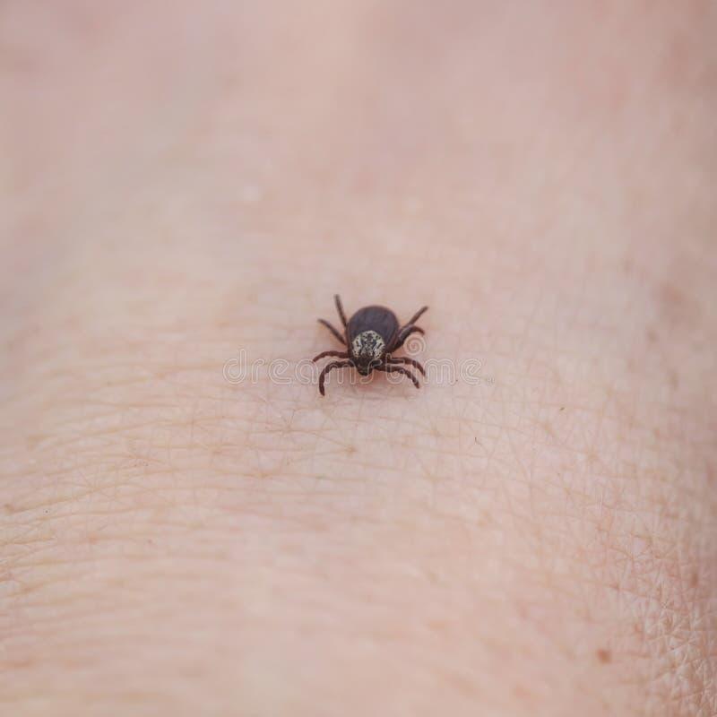 μεταδοτικό έντομο ένας κρότωνας που σέρνεται στο ανθρώπινο δέρμα στοκ φωτογραφία
