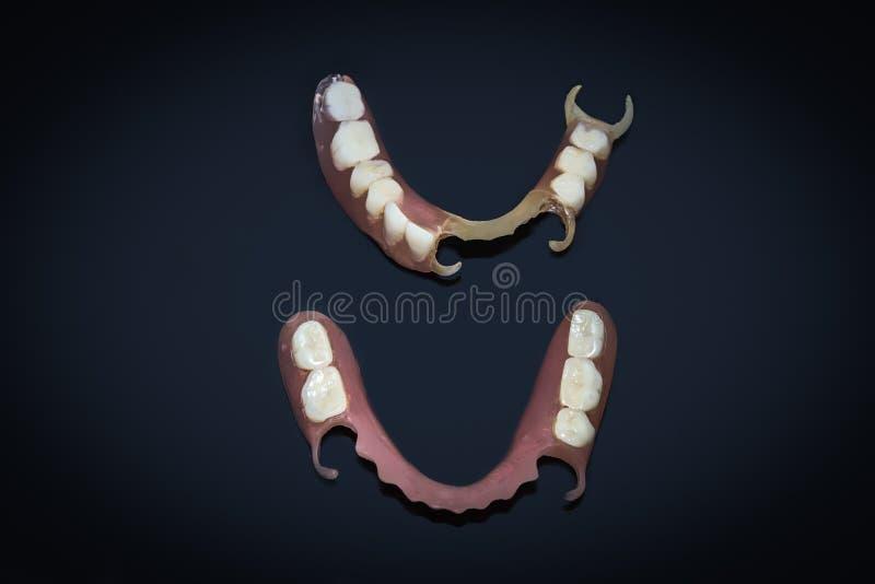 Μετακινούμενες οδοντοστοιχίες εύκαμπτες, απαλλαγμένος νάυλον, hypoallergenic απαλλάξημου από το μονομερές στοκ φωτογραφίες με δικαίωμα ελεύθερης χρήσης