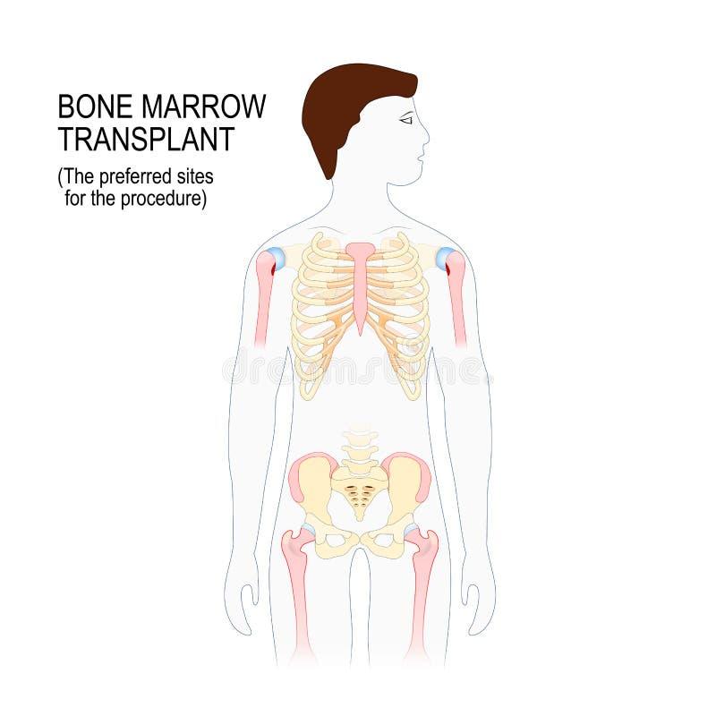 Μεταμόσχευση μυελών των οστών Οι προτιμημένες περιοχές για το transplantat διανυσματική απεικόνιση