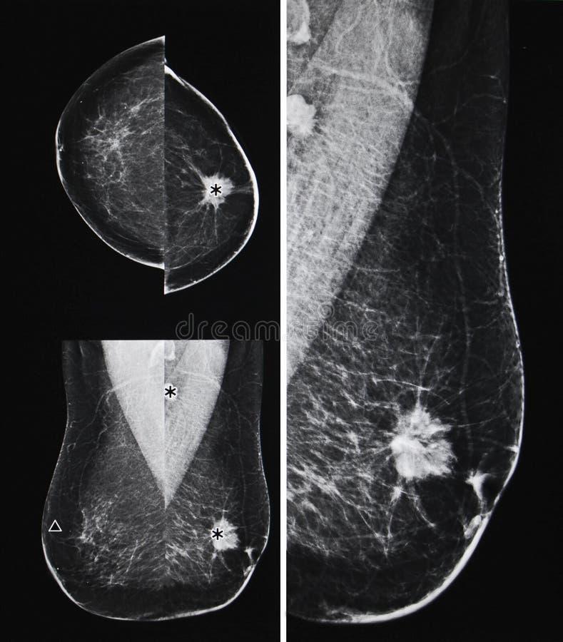 Μεταστατικός καρκίνος του μαστού, μαστογραφία στοκ εικόνες