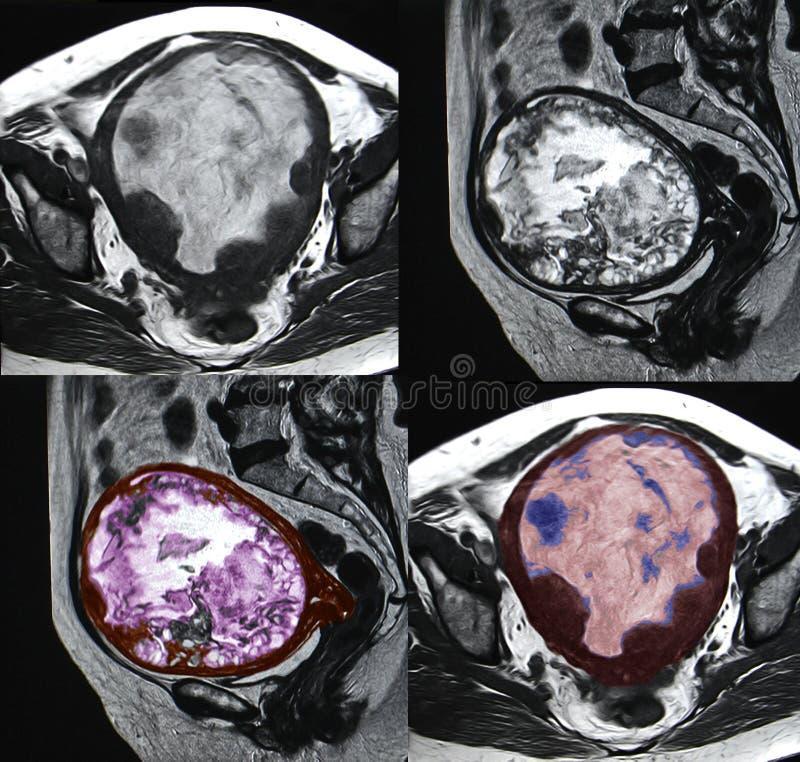 Μητρικός κακοήθης όγκος, εικόνα MRI στοκ εικόνες
