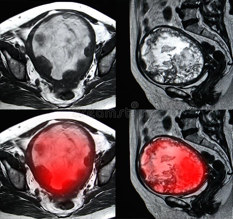 Μητρικός κακοήθης όγκος, εικόνα MRI στοκ φωτογραφία με δικαίωμα ελεύθερης χρήσης