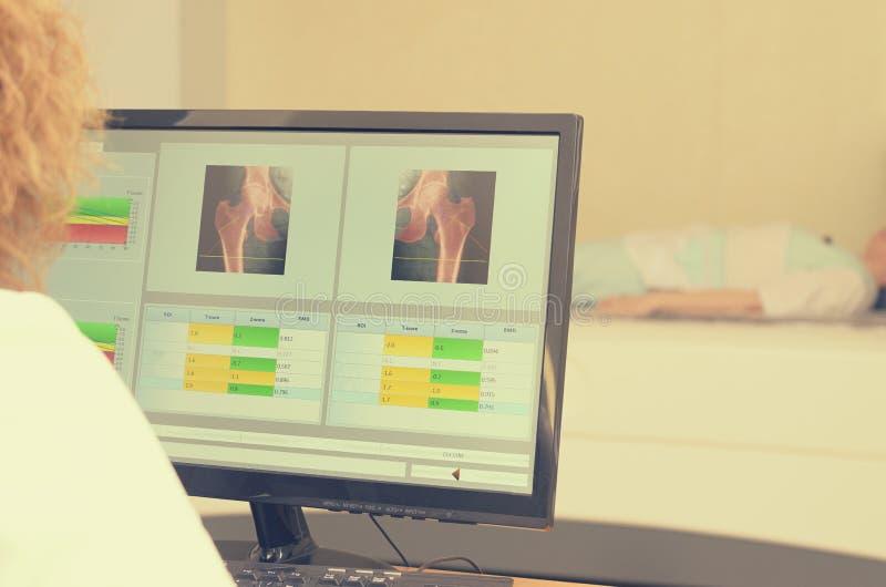 Μια ακτίνα X γυναικών εξετάζει τα αποτελέσματα densitometry στοκ εικόνες