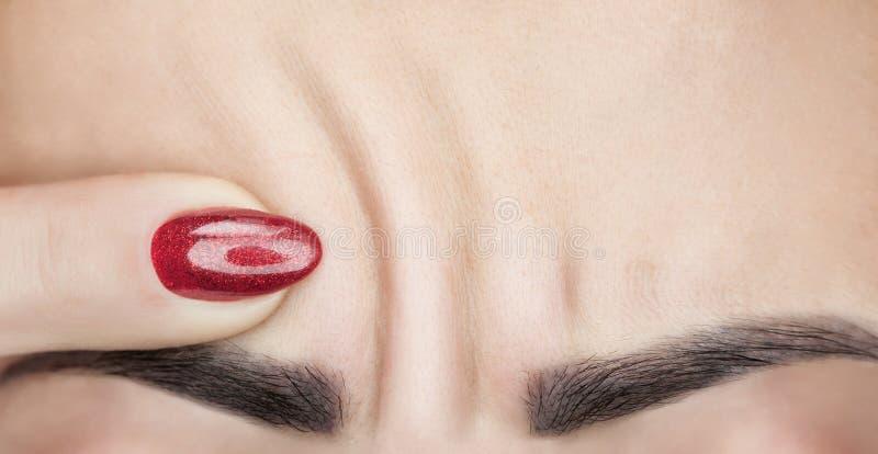 Μια γυναίκα παρουσιάζει βαθιές ρυτίδες στο μέτωπό της Διαδικασία γήρανσης στοκ εικόνες
