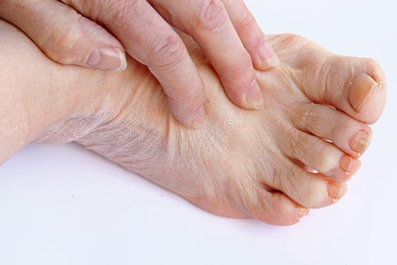 Μια ηλικιωμένη γυναίκα έχει το itchy και ξηρό δέρμα σε ετοιμότητα και τα πόδια της στοκ εικόνα με δικαίωμα ελεύθερης χρήσης