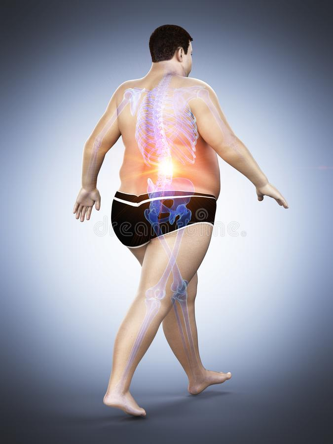 Μια παχύσαρκη επίπονη πλάτη δρομέων απεικόνιση αποθεμάτων