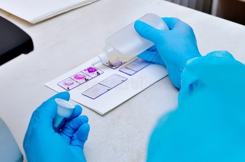 μικροσκόπιο Μικροβιολογικό εργαστήριο Φόρμα και μυκητιακοί πολιτισμοί Βακτηριακή έρευνα μικροβιολογία στοκ εικόνες με δικαίωμα ελεύθερης χρήσης