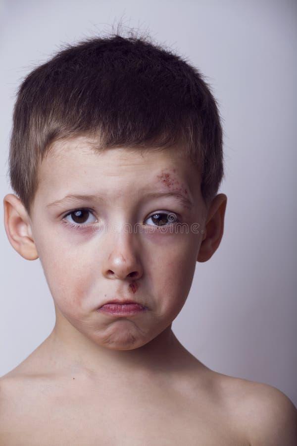Μικρό παιδί με το πληγωμένο πρόσωπο, cockerel μετά από την πάλη στοκ εικόνες