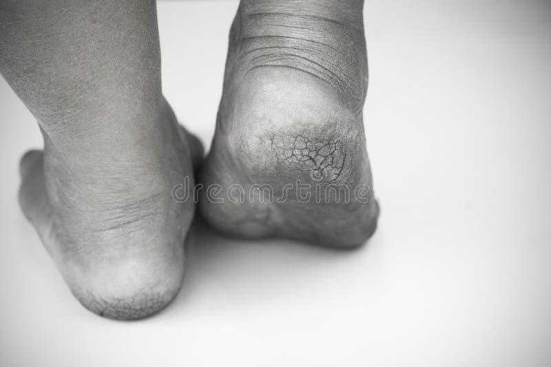 Μονοχρωματικός ή πίσω και άσπρος του βρώμικου ποδιού ή των ραγισμένων τακουνιών απομονώστε στο άσπρο υπόβαθρο, ιατρικός ή τα πόδι στοκ εικόνες