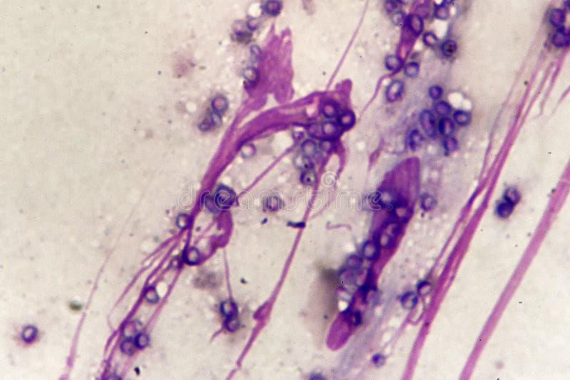 Μορφή ζύμης marneffei Talaromyces στο δέρμα του ασθενή του AIDS στοκ εικόνες