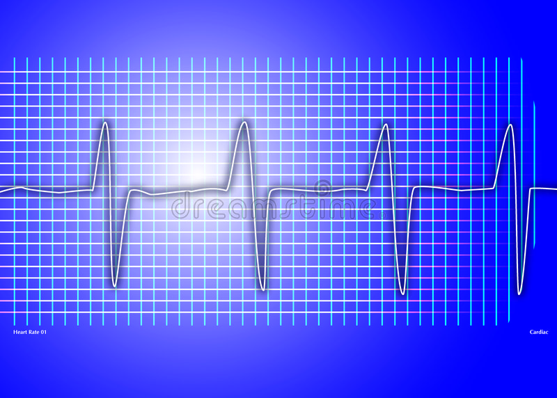 Download μπλε καρδιακή γραφική παράσταση Απεικόνιση αποθεμάτων - εικονογραφία από εργαστήριο, ασθενής: 525504