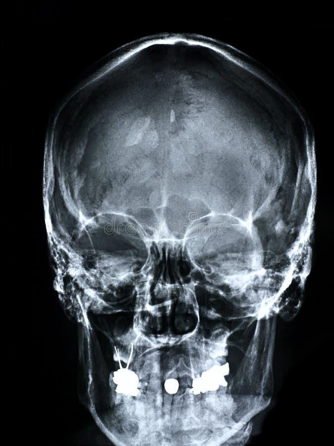 μπροστινή ακτίνα X προσώπου στοκ φωτογραφία