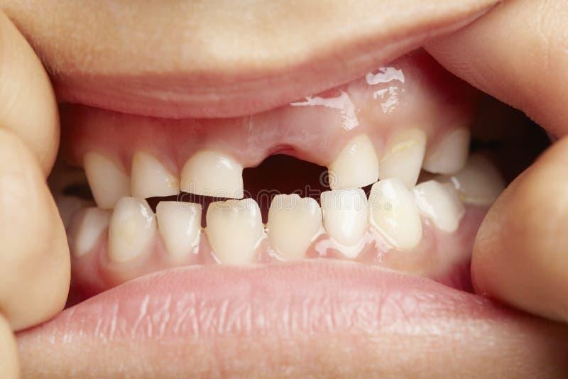 μπροστινό ελλείπον δόντι κοριτσιών στοκ εικόνες με δικαίωμα ελεύθερης χρήσης