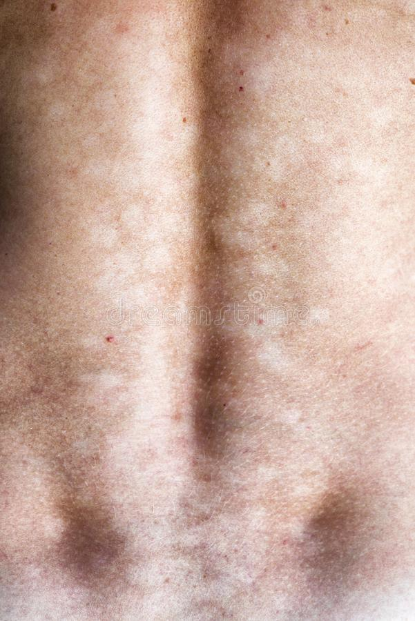 Μυκητιακή μόλυνση του δέρματος στοκ εικόνες