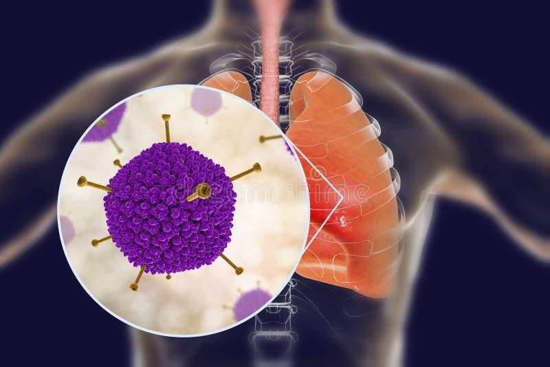 Μόλυνση ιών των αδένων, ιοί των αδένων στους ανθρώπινους πνεύμονες διανυσματική απεικόνιση