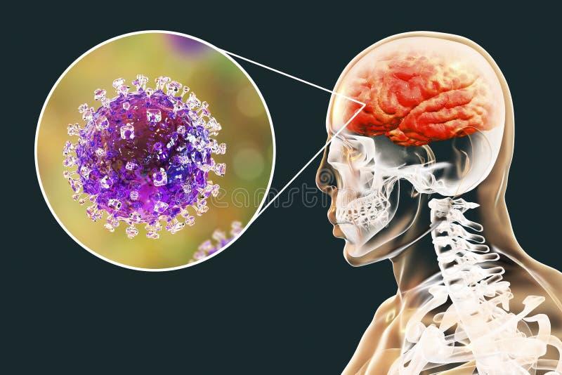 Μόλυνση ιών Nipah διανυσματική απεικόνιση