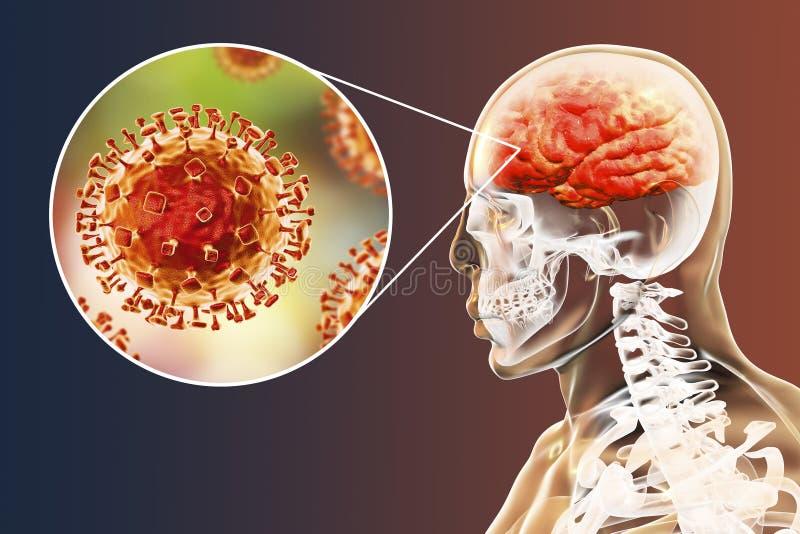 Μόλυνση ιών Nipah ελεύθερη απεικόνιση δικαιώματος