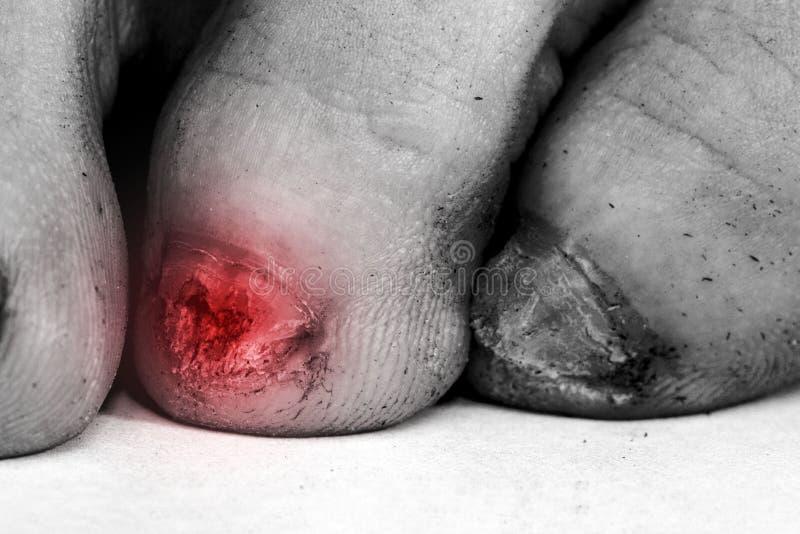 Μόλυνση μυκήτων στα καρφιά των αρσενικών ποδιών στοκ φωτογραφίες με δικαίωμα ελεύθερης χρήσης