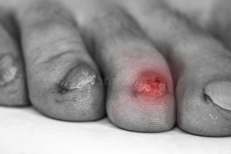 Μόλυνση μυκήτων στα καρφιά των αρσενικών ποδιών στοκ φωτογραφία