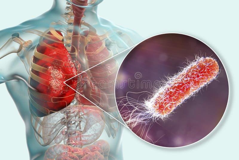 Μόλυνση πνευμόνων που προκαλείται από το pseudomonas-$l*aeruginosa βακτηριδίων διανυσματική απεικόνιση
