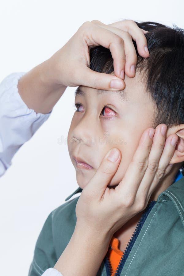 Μόλυνση Pinkeye (επιπεφυκίτιδα) σε ένα αγόρι, έλεγχος γιατρών επάνω στο μάτι στοκ φωτογραφία με δικαίωμα ελεύθερης χρήσης