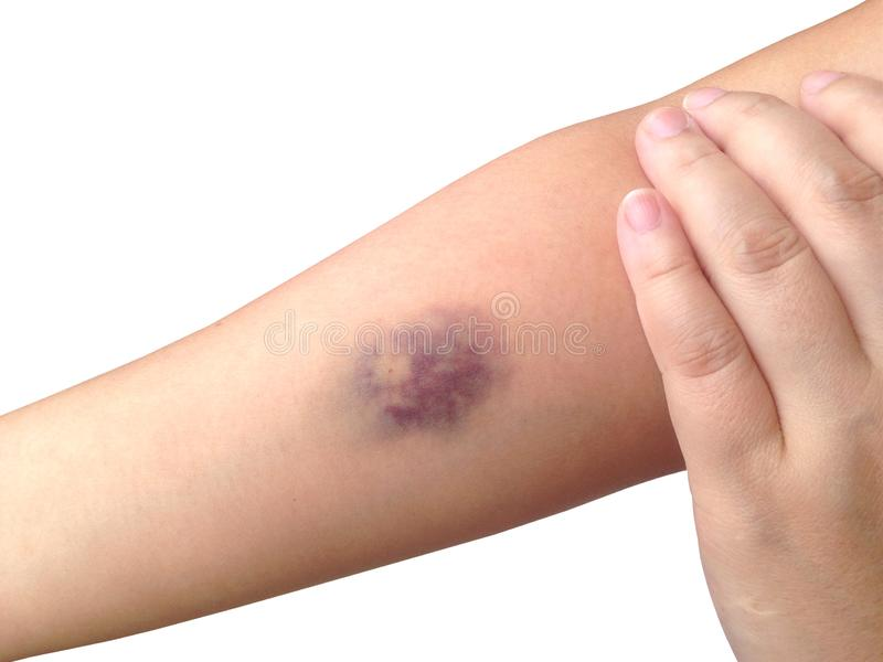 Μώλωπες από τη συλλογή αίματος που απομονώνεται στο άσπρο υπόβαθρο στοκ φωτογραφία με δικαίωμα ελεύθερης χρήσης