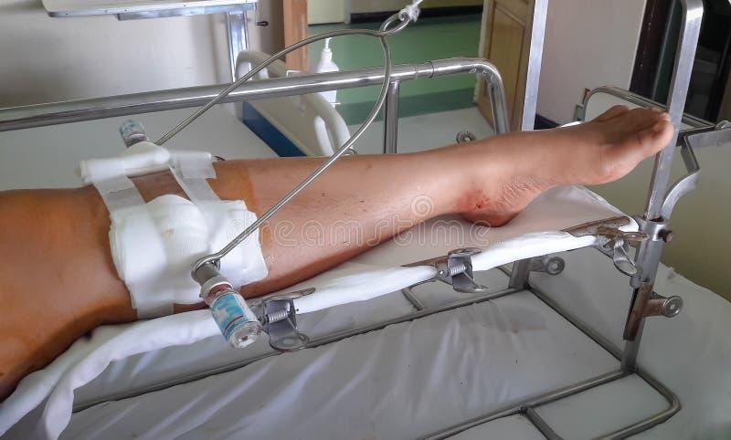 Νάρθηκας ποδιών με το σίδηρο στο πόδι στοκ εικόνες