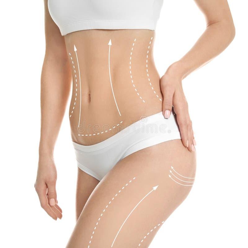 Νέα γυναίκα με τα σημάδια για τη λειτουργία liposuction στοκ εικόνες